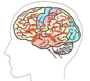epileptiskt anfall